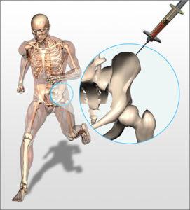 bone_marrow_draw-271x300.jpg