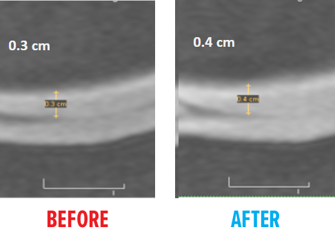 knee-msc-mri-before-after3.png