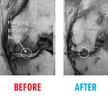 knee-avn-mri-before-after2.png