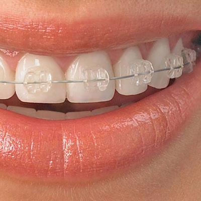 clear-braces-square.jpg