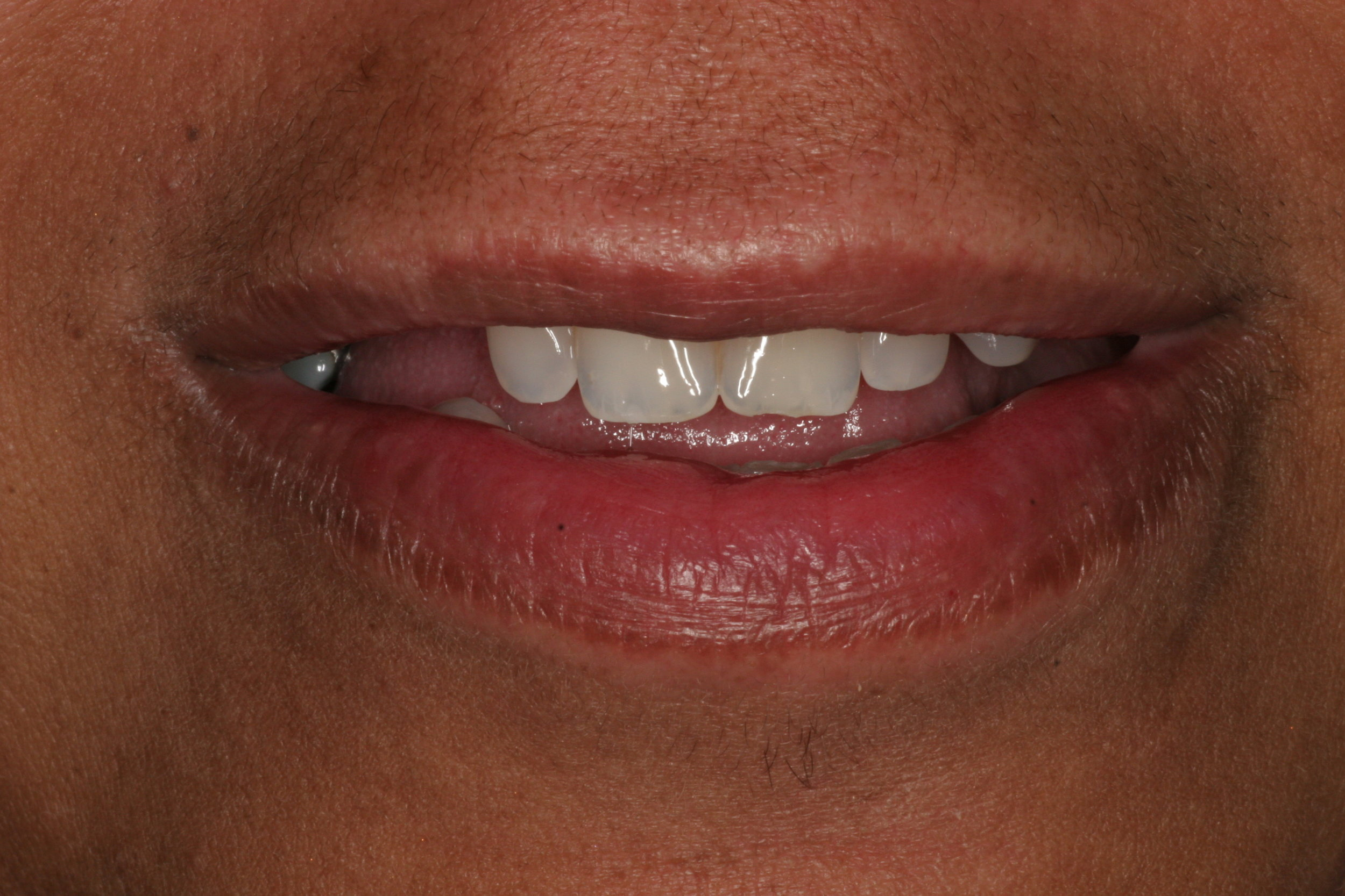 Female, 58 years old Interested in replacing missing teeth with dental implants.