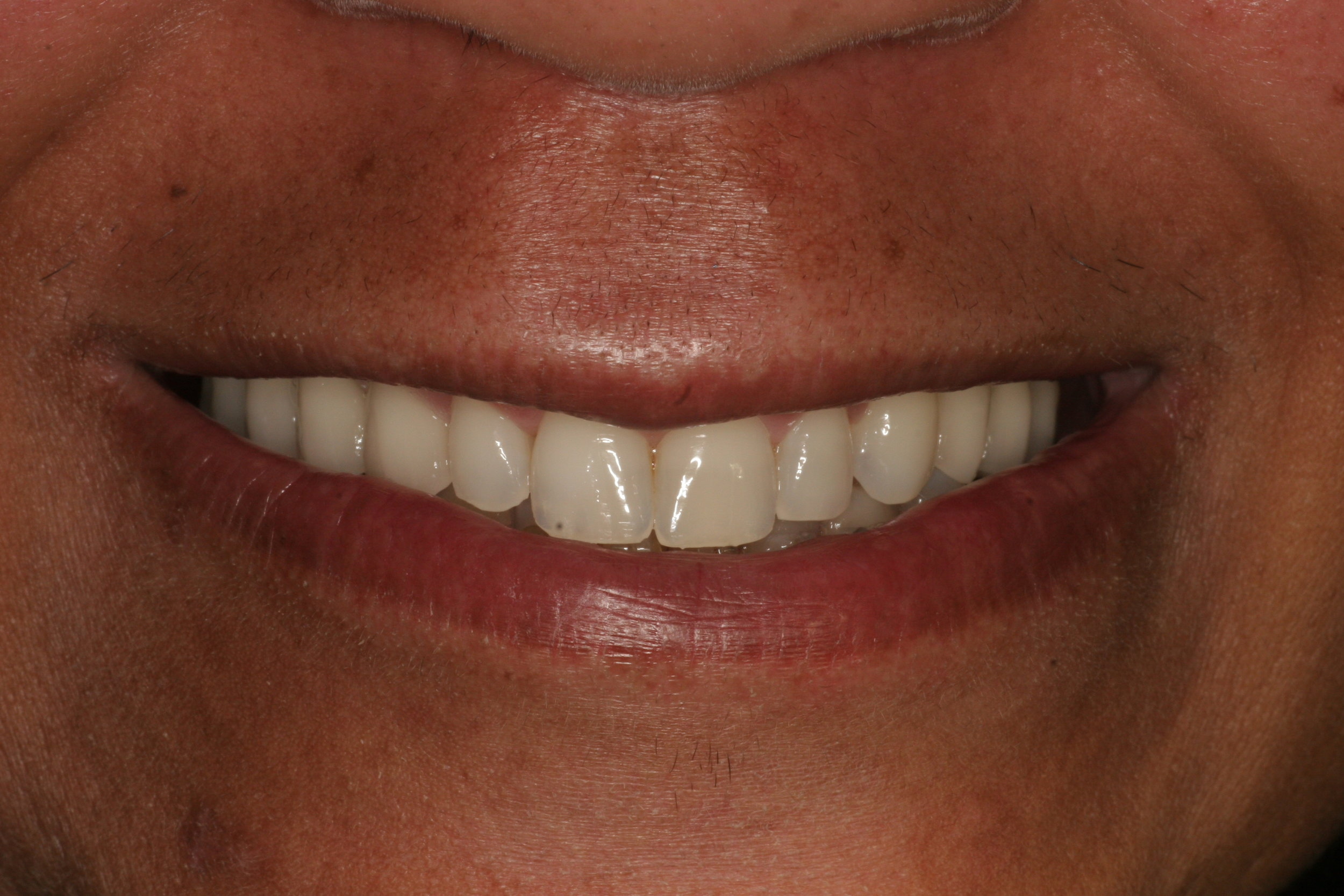 We placed 6 dental implants on this patient's left and right sides and used fixed bridges to restore her smile.