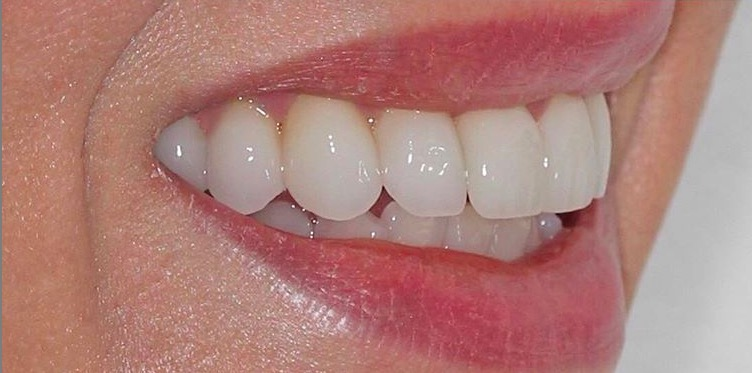 We used Digital Smile Design technology to virtually design Julie's new smile. Through an advanced 3d printing process, we were able to deliver 12 porcelain veneers that integrated beautifully with Julie's face.