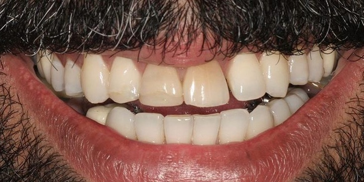 Jason came to us because he didn't like his crooked and discolored teeth. He wanted a broad, even and bright smile.