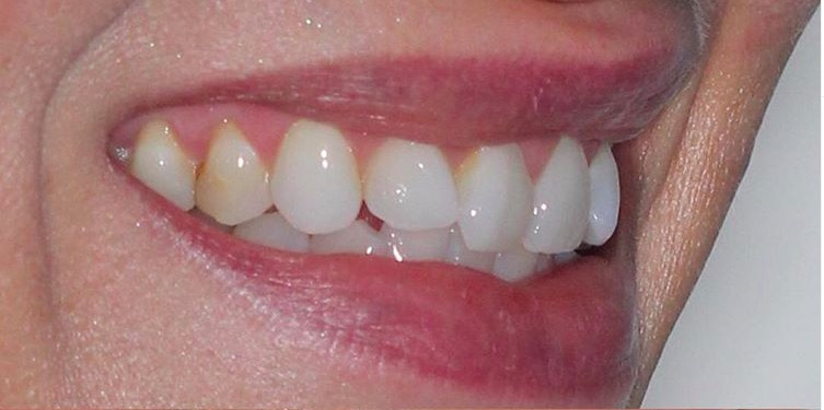 Julie didn't like her smile. She didn't want to consider Invisalign or orthodontic treatment and wanted to improve her smile with porcelain veneers.