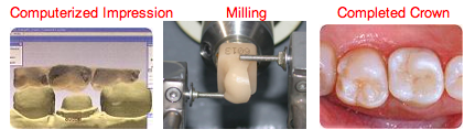 With CEREC, a computer takes an image of your prepared tooth. In just a few minutes, the Core Smiles doctors will design your tooth using computer technology, and then that information is wirelessly sent to a milling unit that we carve your new tooth out of a block of ceramic with incredible precision!