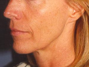 B-Face-Front-B.jpg