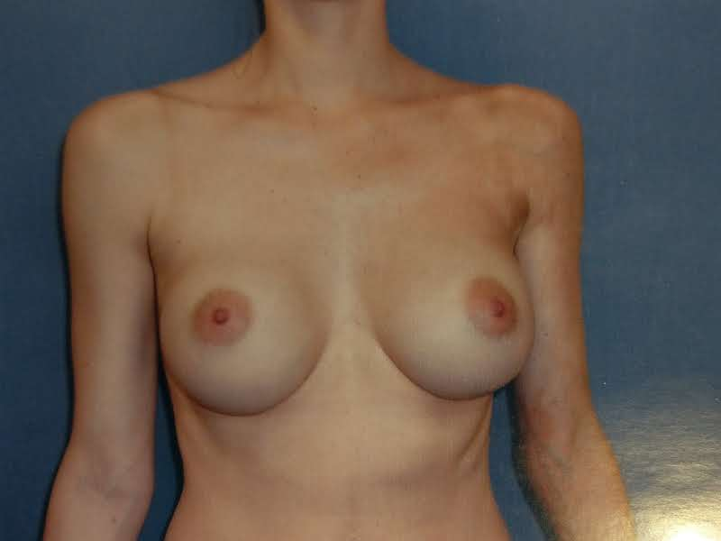 A Before (Submuscular smooth gel).jpg