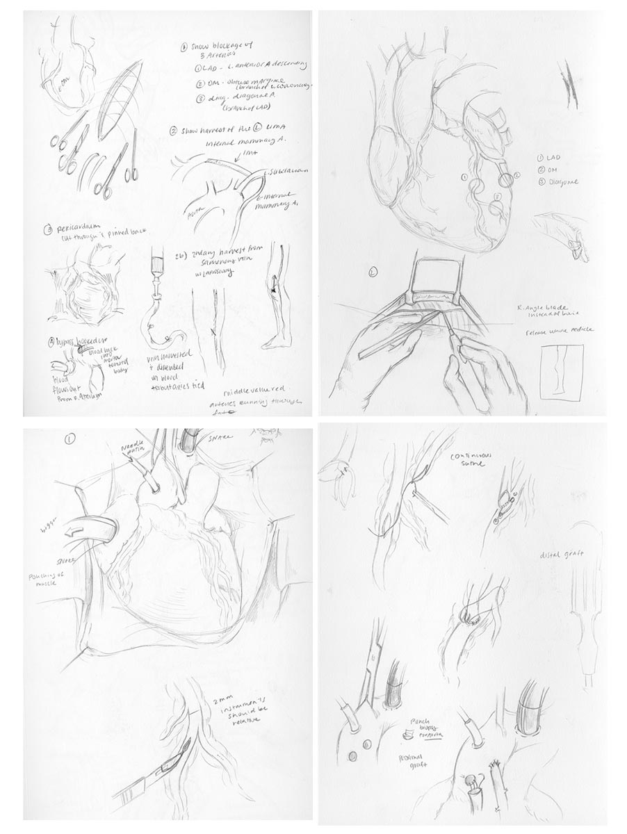 OR Sketches - Sketches through direct observation in the OR. Captured major steps and wrote down important notes during the surgical procedure.