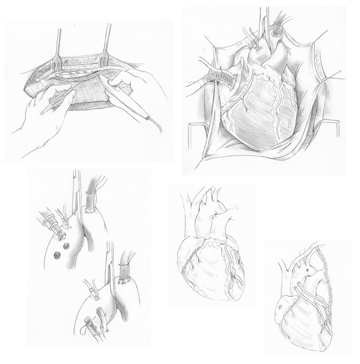 Initial Tone Sketches - Using OR sketches and additional research, completed a set of tonal studies of each important step in the surgery.