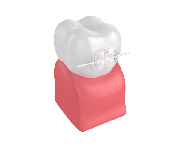Tooth with ceramic brace and white wire