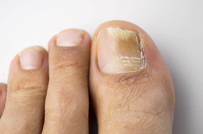 Mild Infection
