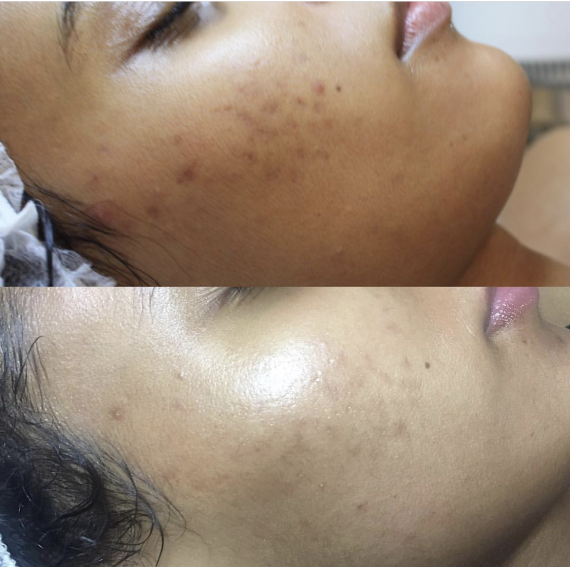 natrabella-skincare-peel-before-after.jpeg