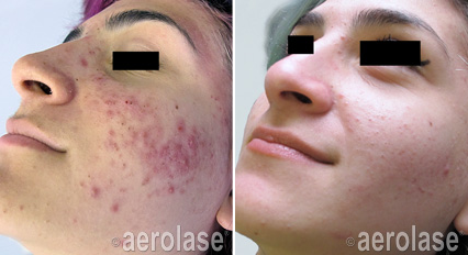 Acne1 - Pair.png