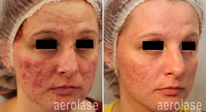 Acne2 - Pair.png