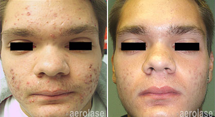 Acne3 - Pair.png