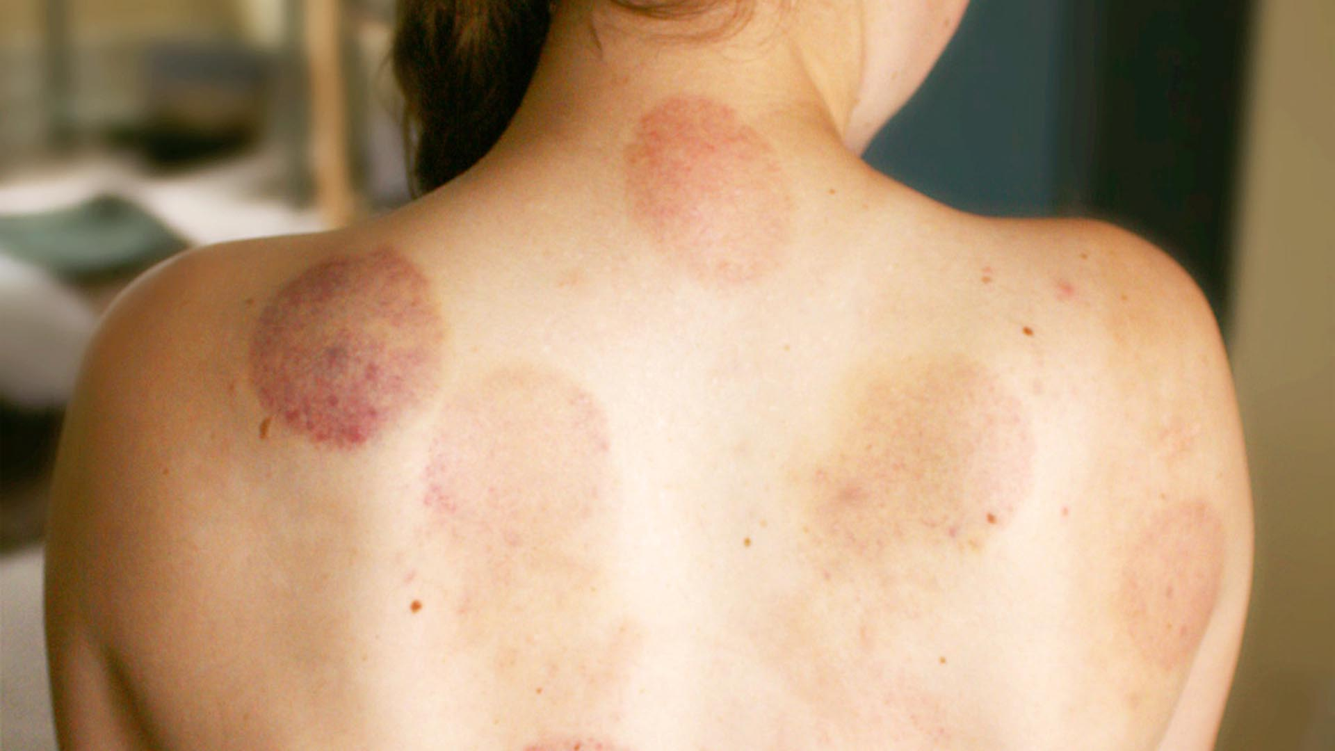 Do you know the meaning of the different cupping marks