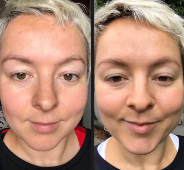 clear-skin-Revive-Active-before-after.jpg