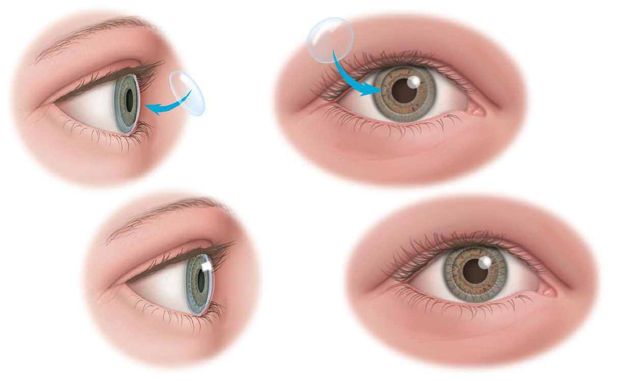 Illustration of Corneal Transplants · Dr Brendan Cronin · Brisbane Ophthalmologist
