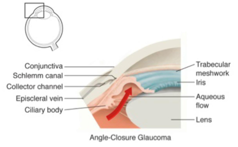 Angle Closure Glaucoma.