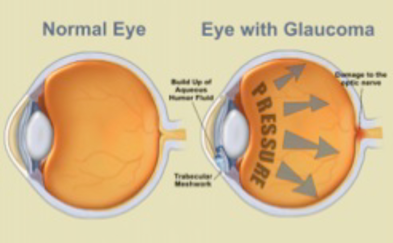 Normal Eye and Eye with Glaucoma Diagram Dr Brendan Cronin Brisbane.jpg