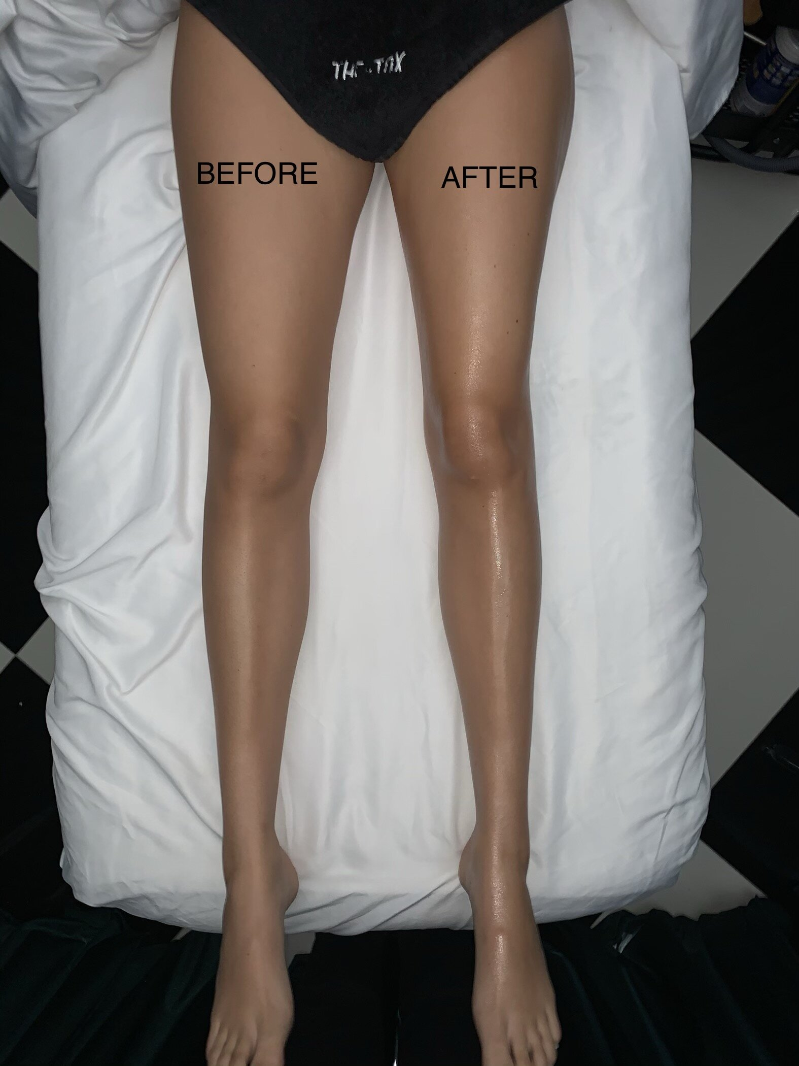 Lymphatic Drainage Before and After Julia Friedman