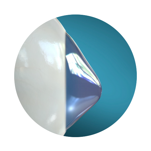 keratoconic cornea (1).png