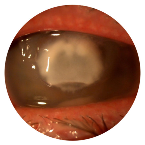 bacterial-corneal-ulcer.png