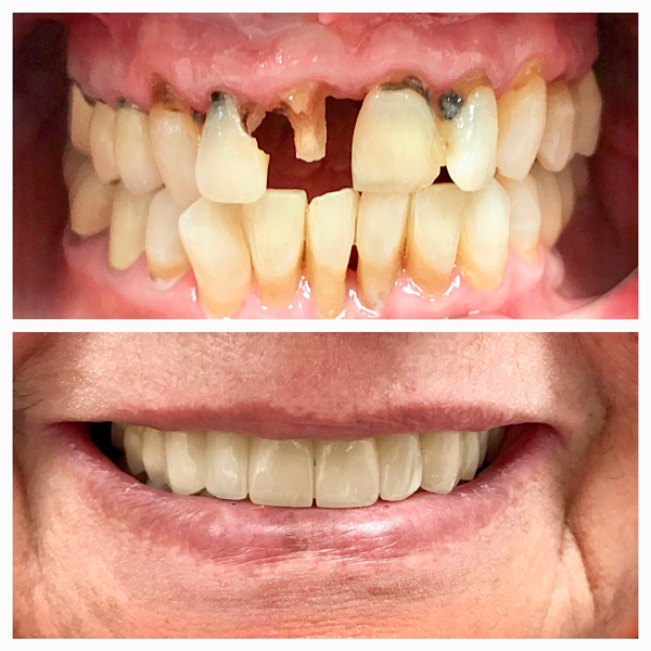 Check out these before and after pictures.  Her smile was improved with porcelain crowns.  She was extremely happy with the results!!