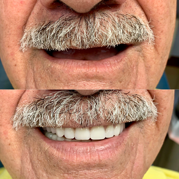 Mini dental implants retained dentures. No glue on your dentures anymore. From no teeth to full set of teeth. Patient very satisfied with the results. Call us for more information.