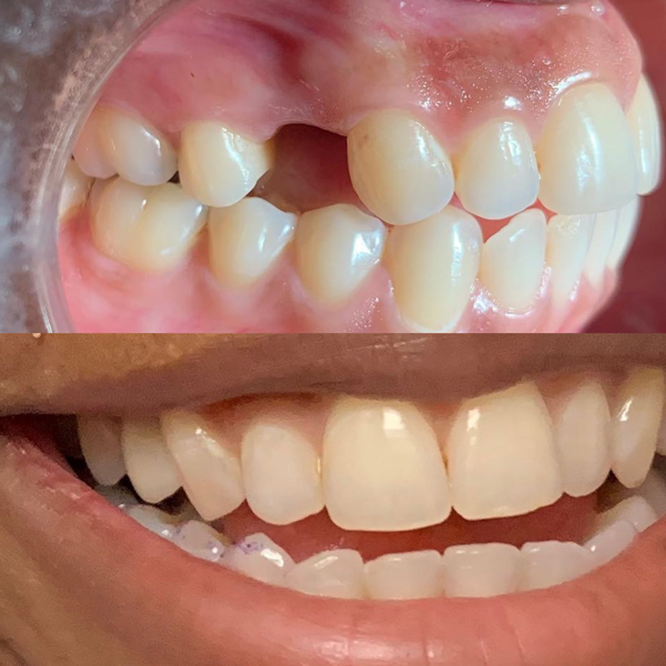 Missing tooth was replaced with an implant supported porcelain crown. Patient was thrilled with the result.  We made sure we matched the shade and shape of the teeth. Very difficult to tell which tooth we replaced.  Call us for your free consultation!!