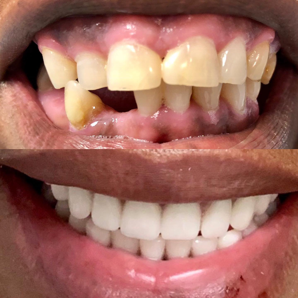 Before and after pictures of this amazing patient. She got the smile she always deserved.  Contact us for your free dental implant consultation!