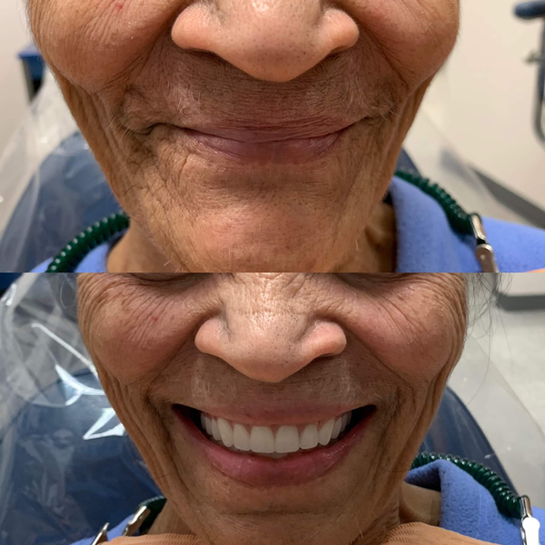From no teeth to full set of teeth. She loved her new million dollar smile. She couldn't stop smiling!  Contact us for your free consultation!!