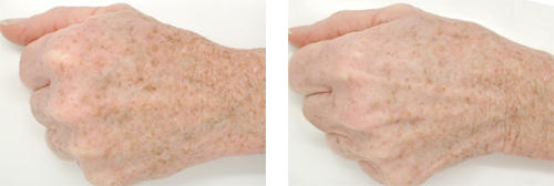 before-after-hand-revision.jpg