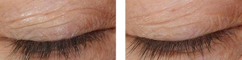 eyes-before-after-02.jpg