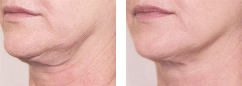 xbefore-after-neck-revision2.jpg.pagespeed.ic.rTpZLUIj-L.jpg