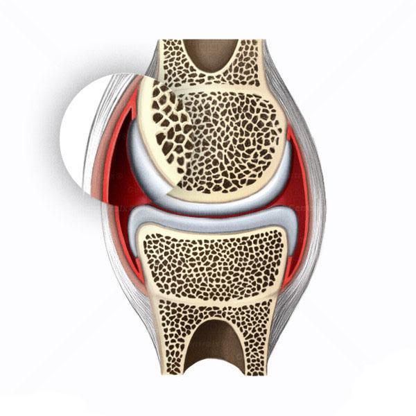 membrana-sinovial-articulacoes.pt.jpg