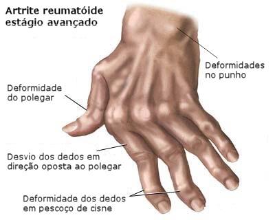 artrite-reumatoide-articulacoes.pt.jpg