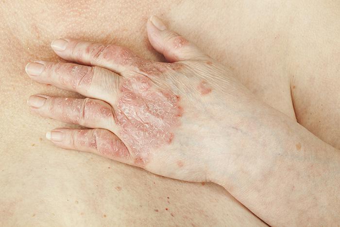artrite-psoriatica-articulacoes.pt.jpg