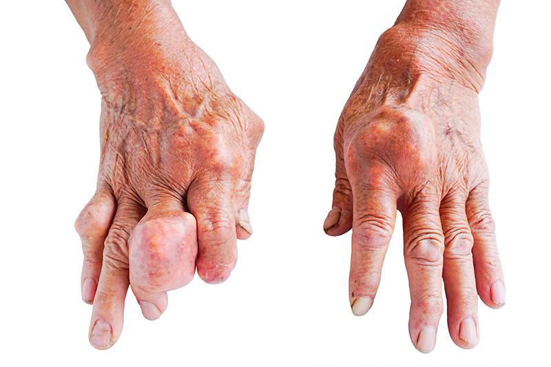artrite-gotosa-articulacoes.pt.jpg