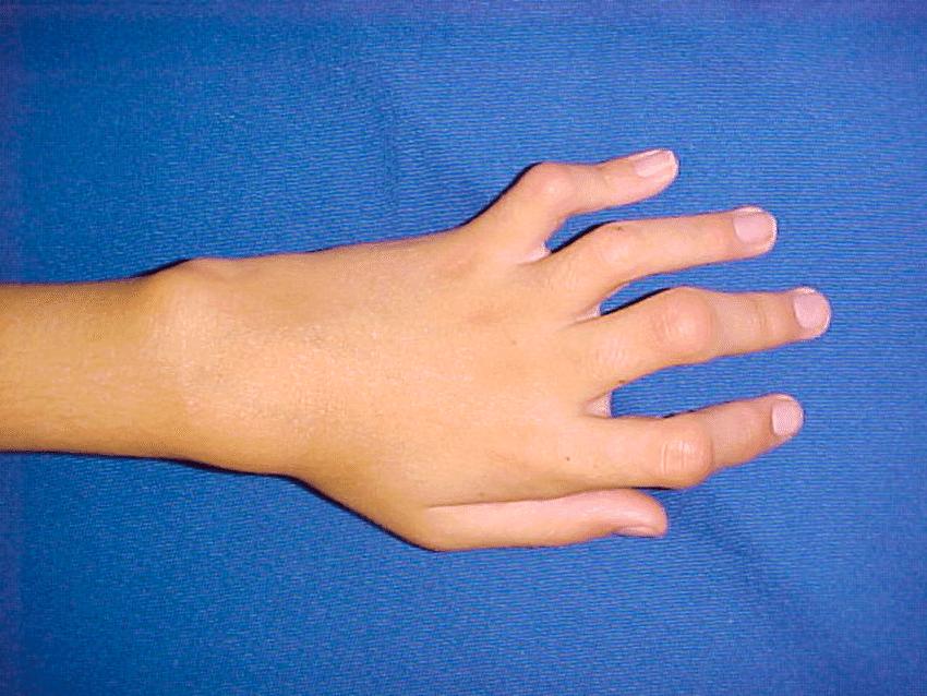 artrite-diopatica-juvenil-articulacoes.pt.png