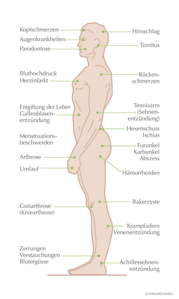 Hirumed-Blutegeltherapie-Indikationen.jpg