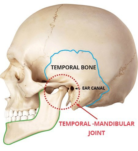 What is TMJ? - Tempro-Mandibular Joint Dysfunction Syndrome (TMJ) is a common condition affecting a wide variety of people. TMJ is characterized by severe headaches, jaw pain of varying degrees, grinding teeth, and an intermittent ringing in the ears. The vast majority of TMJ sufferers are unaware that the root cause of these problems is something that a dentist can effectively treat… Learn more about TMJ