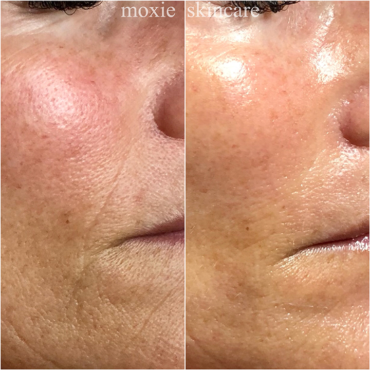 DMK Muscle Banding Enzyme Therapy is the perfect non-invasive alternative to injectables. Notice the nasolabial fold has filled out and the skin is brighter, smoother and glowing immediately following treatment.