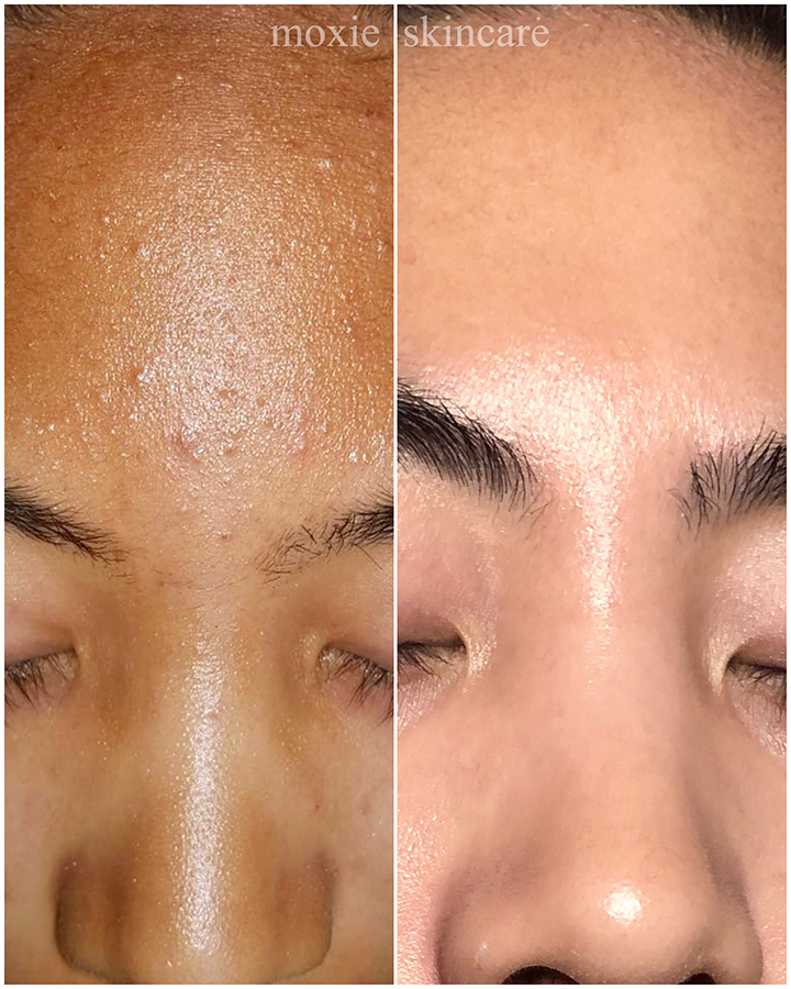 """""""Beautiful skin requires commitment, not a miracle."""" She finally committed to her prescribed home care and diet changes to support the results achieved with DMK Enzyme Therapy treatments. The results speak for themselves."""