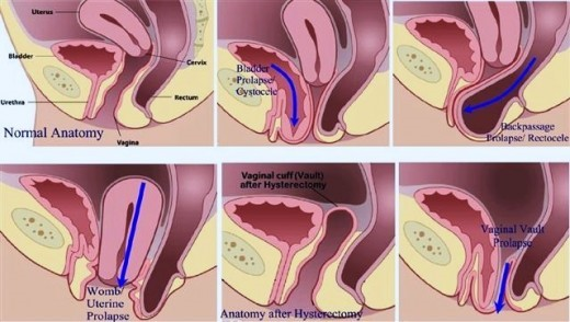 Photo: Sports Plus http://www.sportsplus.ie/womens-health/pelvic-organ-prolapse