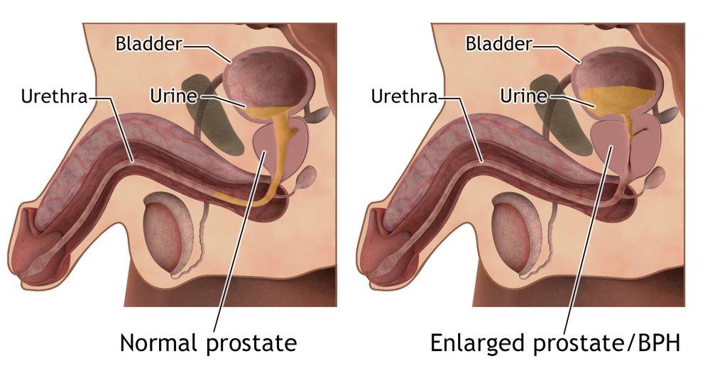 Prostatitis urolithiasis