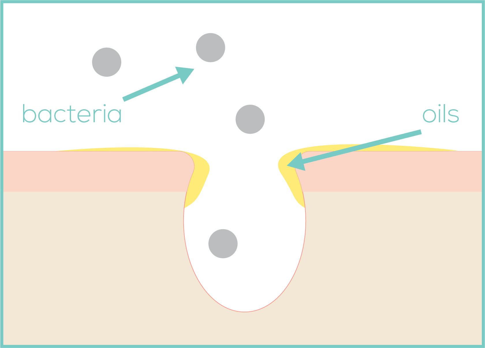 Wider pores enable bacteria and pollution to enter pores.