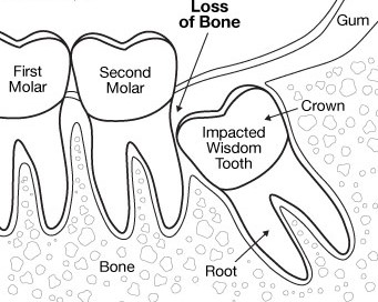 impacted wisdom teeth.jpg