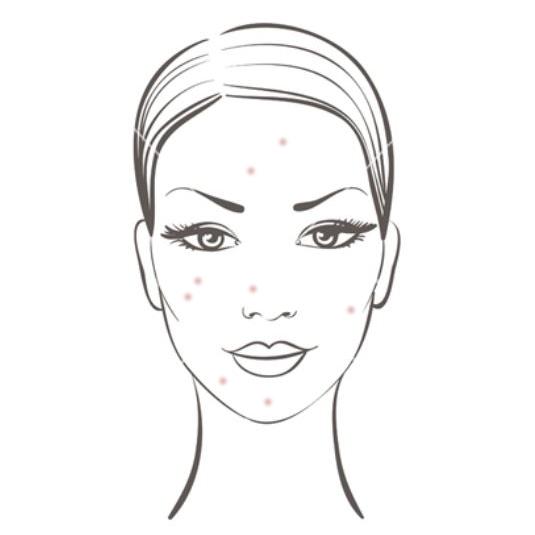 Acne / Greasy / Oily Skin